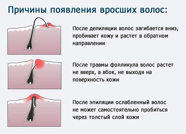 Удаление волоса в домашних условиях