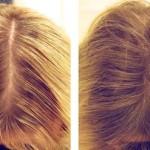 До и после применения ботокса для волос