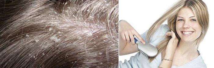 Отшелушивание кожи головы