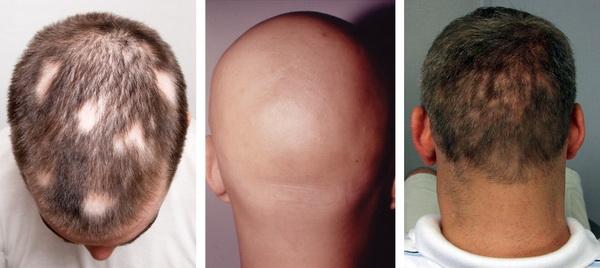 при какой химиотерапии не выпадают волосы
