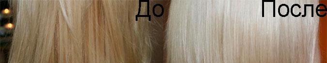 Пирофорез до и после