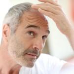 Причины выпадения волос у мужчин – выход есть всегда