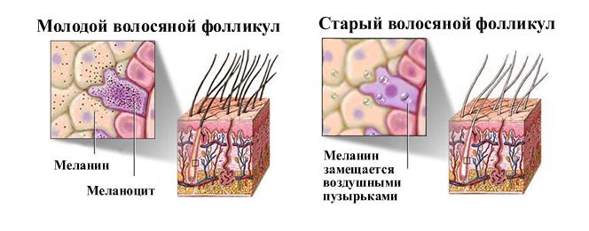 меланин