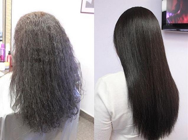 Средство против врастания волос acv отзывы