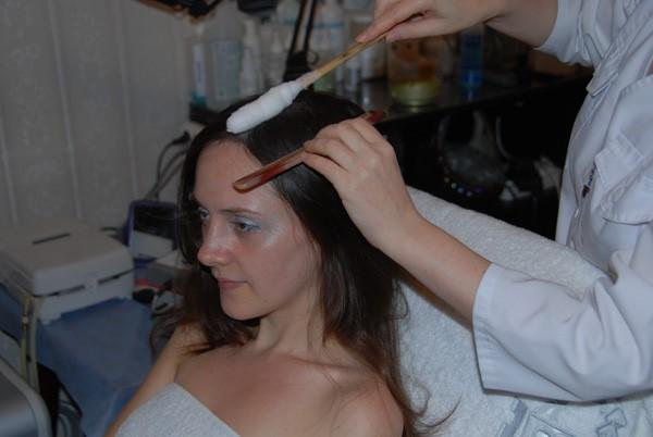 Криотерапия для волос