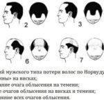 Типы потери волос