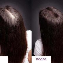 Мезотерапия фото до и после