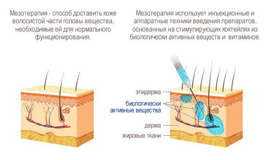 как осуществляется процедура мезотерапия для волос