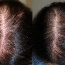увеличился рост волос