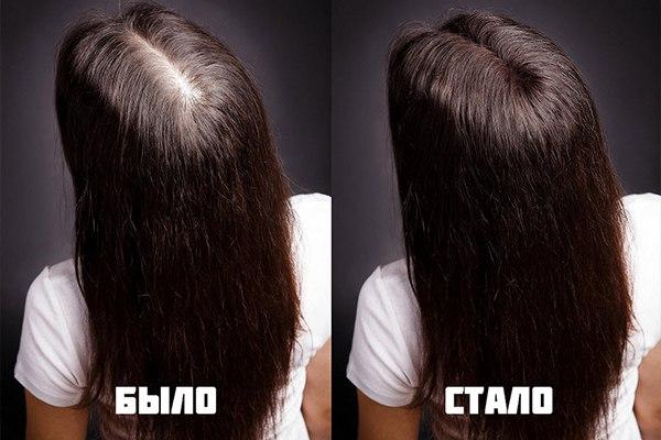 Картинки по запросу лечение перхоть до и после
