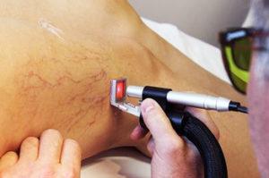 Жидкостные лазеры для лечения