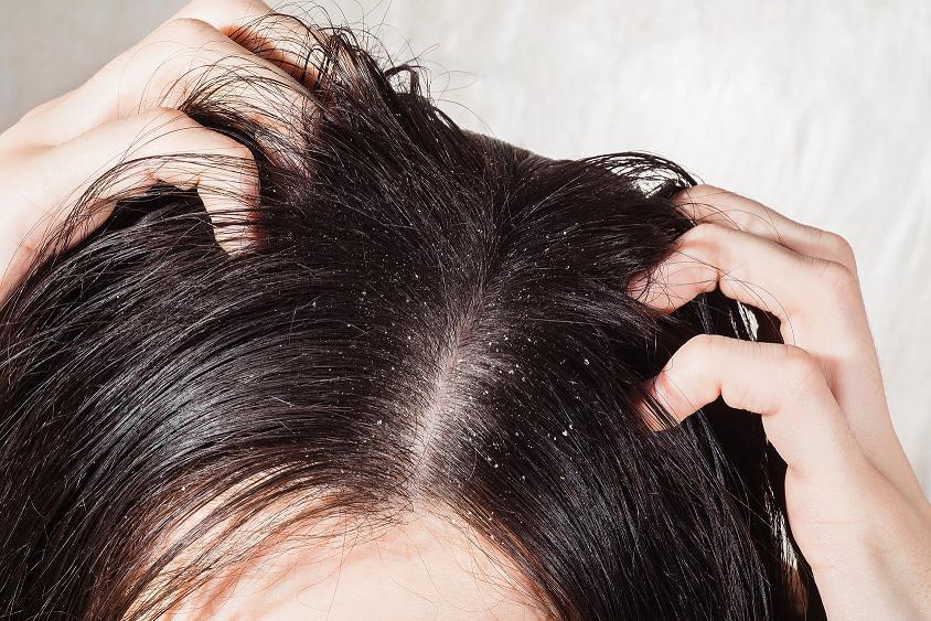 Сухая кожа головы - что делать: правила ухода и обзор 13 эффективных средств