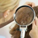 Осмотр волосистой части головы при выявлении педикулеза – алгоритм и срок повторного осмотра у пациентов больниц, детей в школе и детском саду