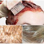 Можно ли убить вшей краской для волос? – ТОП 5 лучших брендов