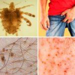 Лобковый педикулез:симптомы и лечение, как выглядят и передаются вши
