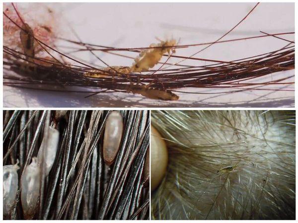 Гниды головных вшей