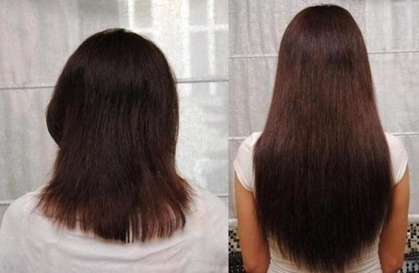 до и после 2