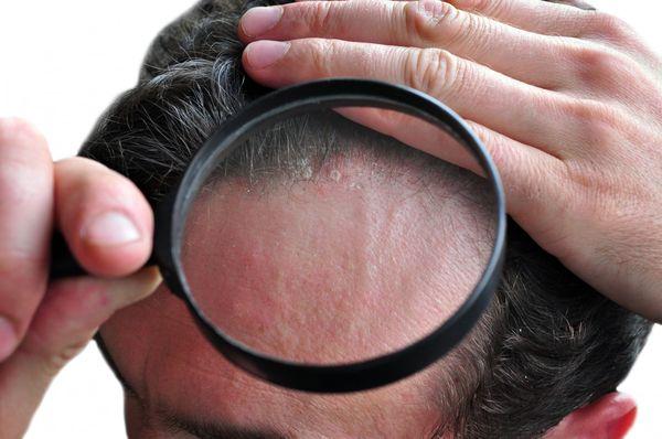 Болячки на голове - коросты в волосах, почему чешется голова, причины и чем лечить у ребенка и у взрослых, фото
