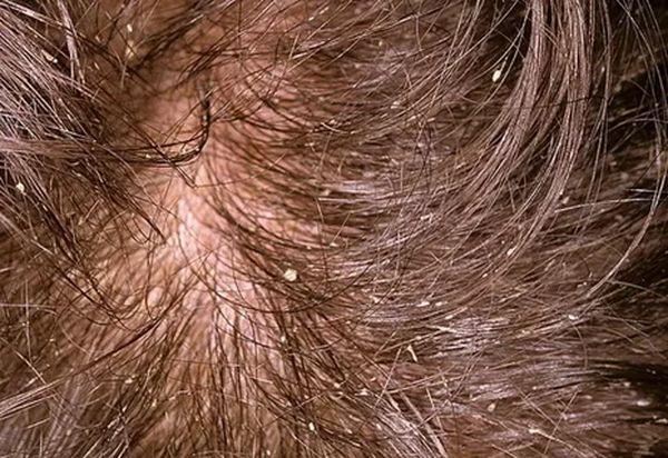 Как лечить себорею на голове в домашних условиях у взрослого и ребенка?